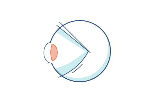 Illustration of an eye with presbyopia