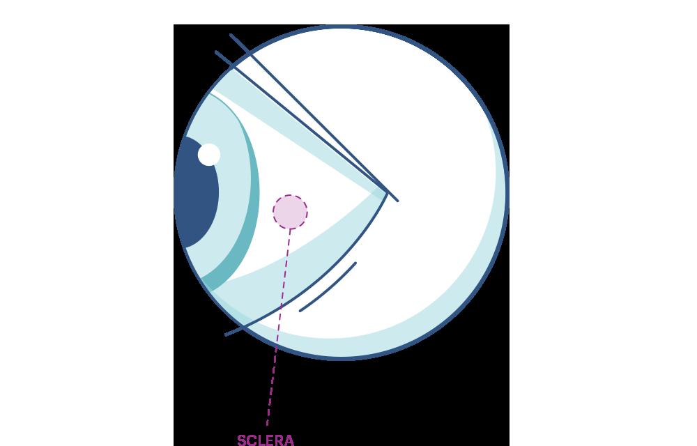 Illustration de n'importe quel oeil mettant en évidence la sclérotique.